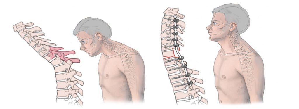 Untere Halswirbelsäule | Koller Wirbelsäule | Ihr Spezialist für ...
